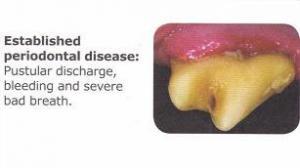 dental4
